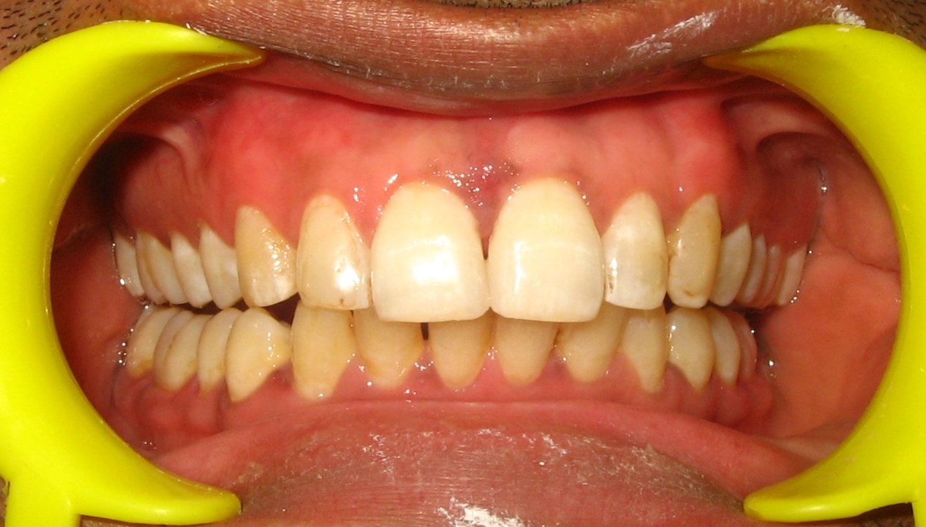Diastema Closure composite bonding