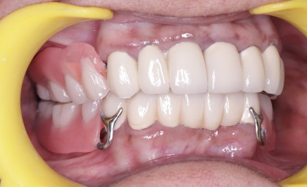 Full Mouth Rehabilitation with Crowns, Post Core Precision Attachments and Cast Partial Dentures.